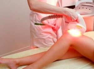 салонные методы эпиляции ног