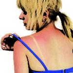 Что делать, если кожа на спине обгорела?