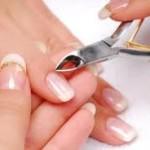 Заусенцы на пальцах: эффективная борьба и профилактика