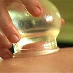 Как правильно делать баночный массаж