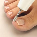 Лечебный педикюр — спасение для проблемных ногтей